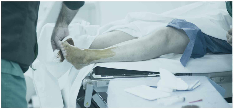 Fußoperation